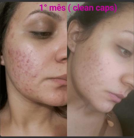 clean caps acne